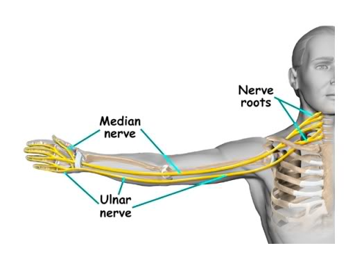 Carpel Tunnel Syndrome   Chiropractor Glengormley
